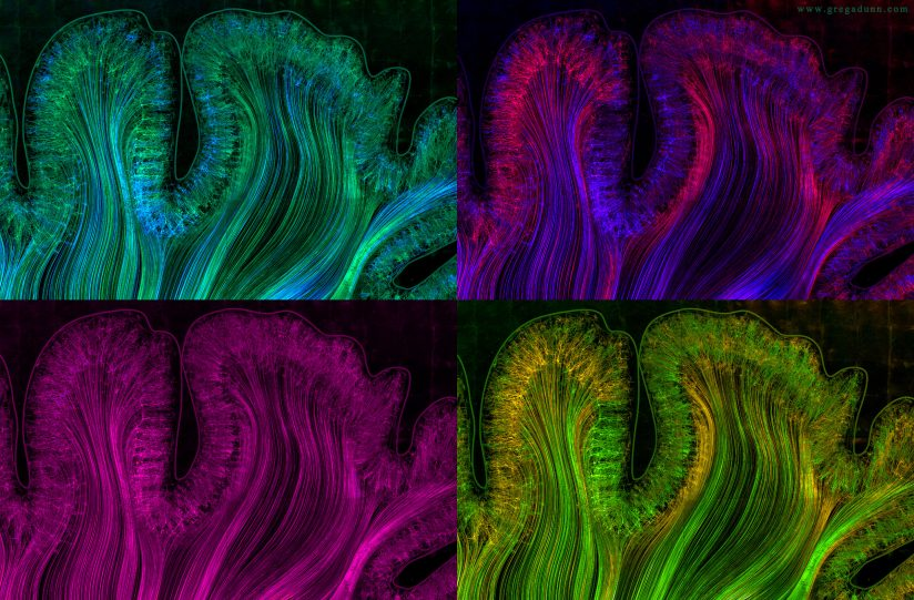 Motor and Parietal cortex color comp