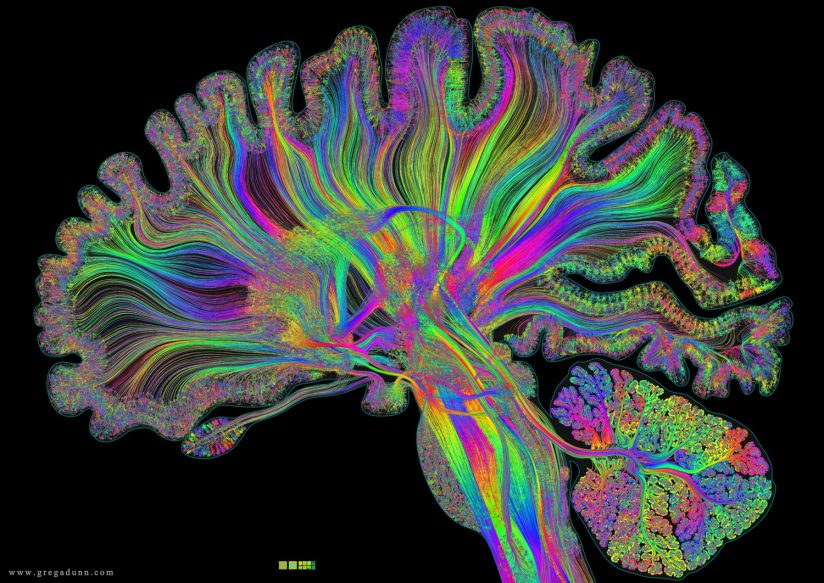 complete brain black background small